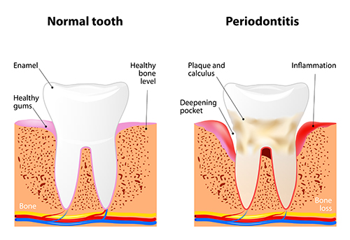Periodontitis diagram used by Boise dentist at Water's Edge Dental.